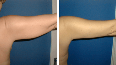 Arm Wing Fat Reduction