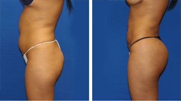 Abdominal Sculpting and Buttock Fat Transfer